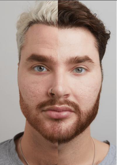 PRX-ansikte-jqklinik